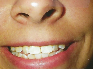 Teeth before Invisalign