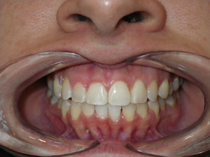 Teeth after Invisalign
